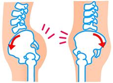 反り腰の骨盤